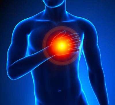 Herzinfarkt: Symptome (Teil 3)