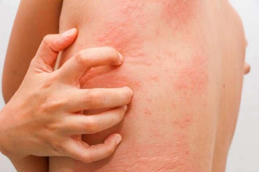 Urtikaria - Leiden ohneEnde?