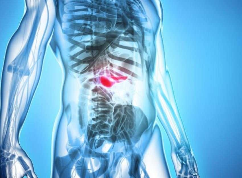 Bauchspeicheldrüsenkrebs: Überblick