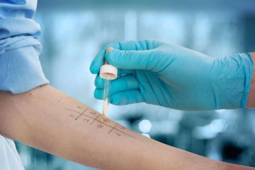 Heuschnupfen (Pollenallergie): Diagnose