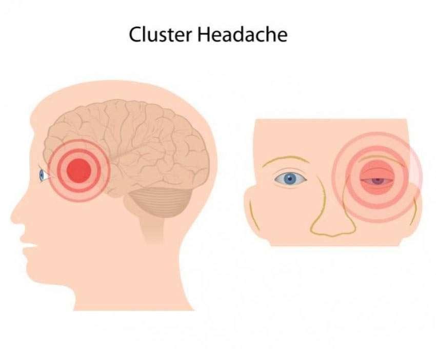 Cluster-Kopfschmerz: Symptome