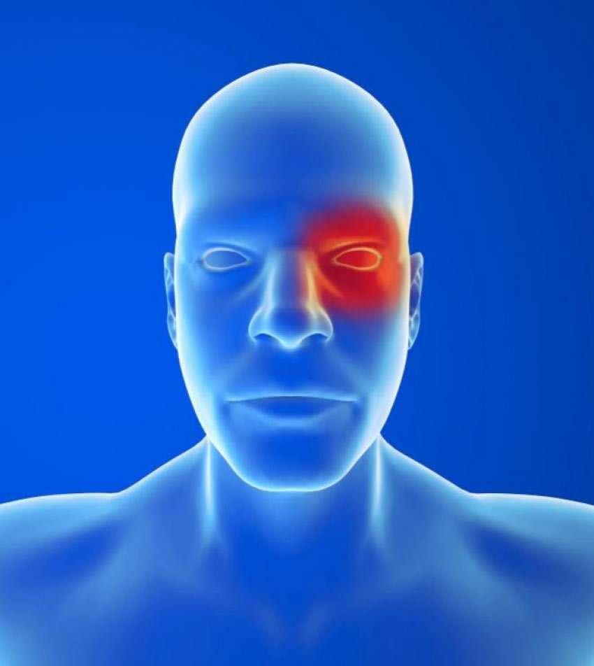 Cluster-Kopfschmerz: Überblick