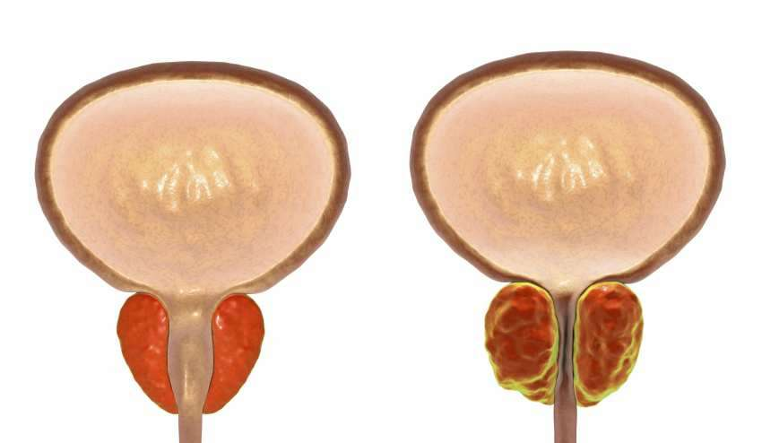 Prostata - Krebsvorsorge