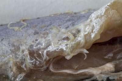 Anisakiasis: Wenn Würmer auf dem Fisch krabbeln