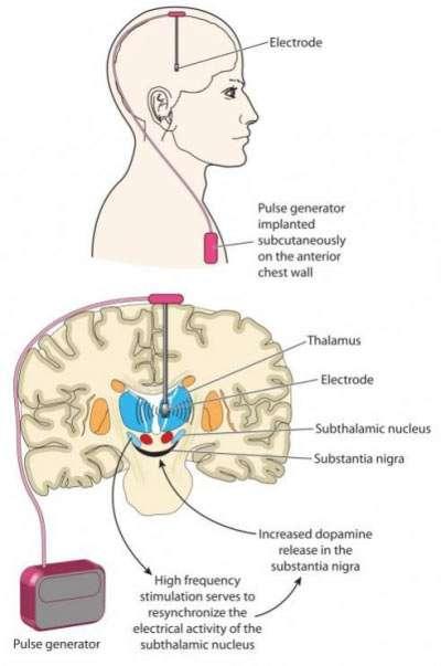 Cluster-Kopfschmerz: Besserung durch Hirnschrittmacher